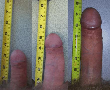Aumente Até + 9 Centímetros No Tamanho Do Pênis